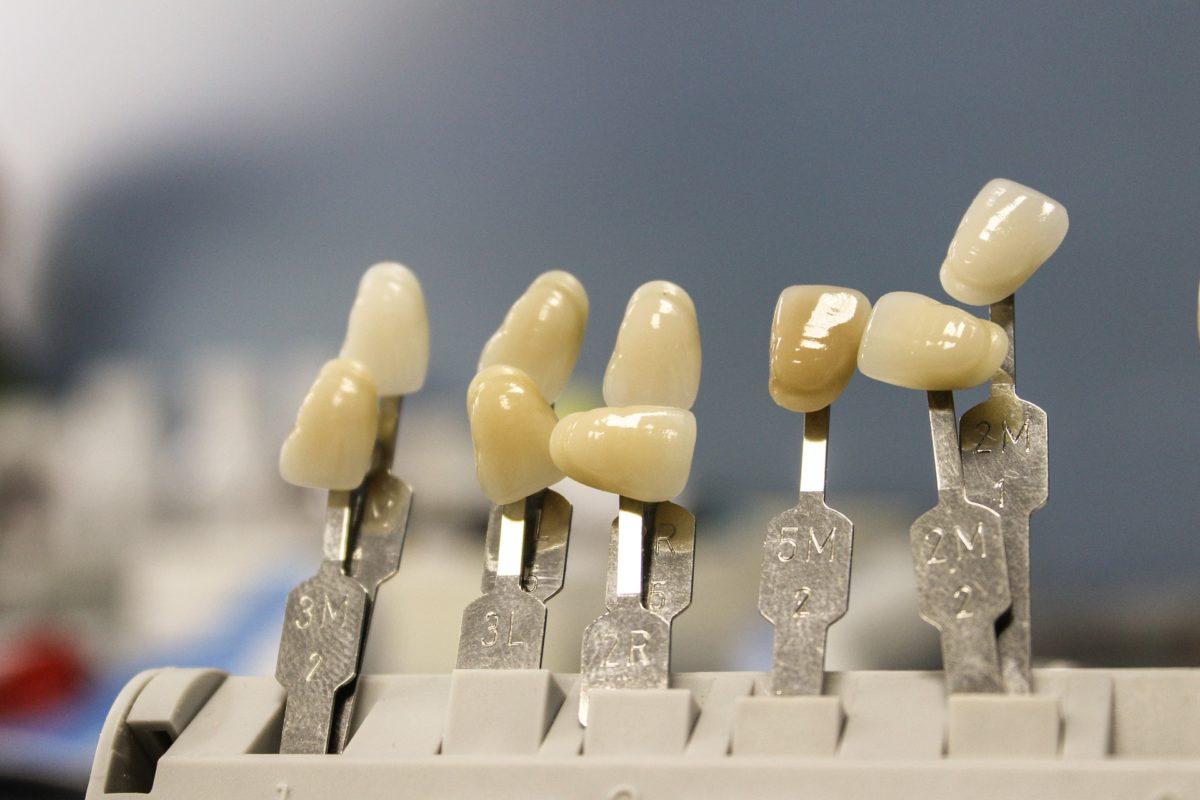 Prześliczne zdrowe zęby dodatkowo efektowny prześliczny uśmiech to powód do płenego uśmiechu.