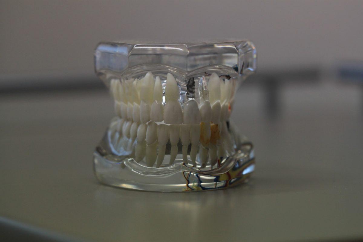 Zła metoda żywienia się to większe ubytki w zębach oraz także ich brak